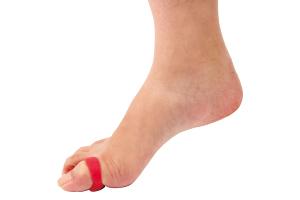 ヒザ痛 腰痛 足マメ O脚 X脚 外反母趾 開帳足 偏平足 骨格の歪みを改善してくれるスタブリングとは?